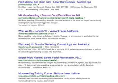 NH MICRO NEEDLING